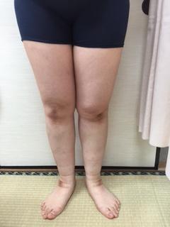 yoshinoashi1.JPG